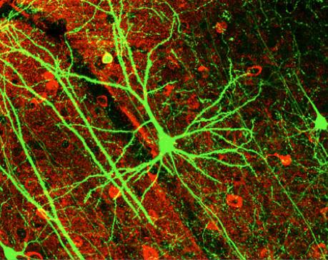 Pyramidový neuron