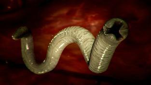 Ascaris Lumbricoides neboli škrkavka dětská