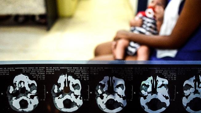 Brazilka drží své dítě postižené mikrocefalií