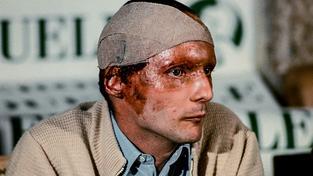 Lauda na slavné tiskové konferenci po nehodě