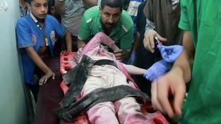 V syrském Halabu (Aleppo) od minulého pátku zemřelo 96 dětí, další tři stovky jsou zraněné