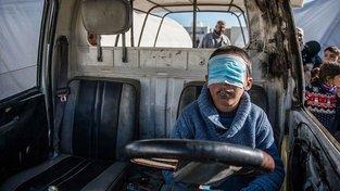 Znetvořené syrské dítě z Aleppa
