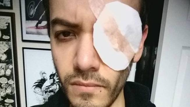 Cosplayerovi hrozí ztráta oka kvůli barevným čočkám