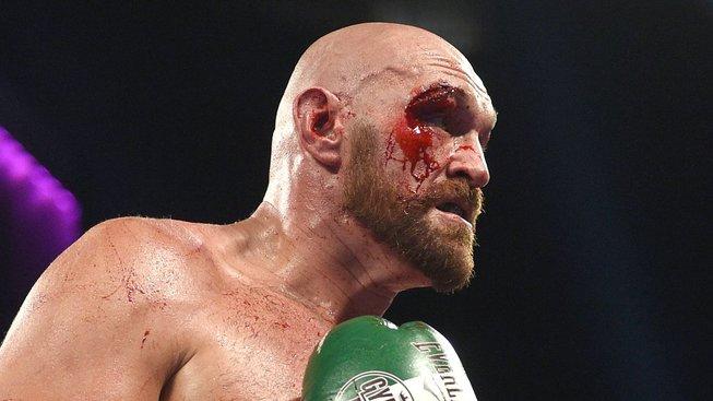 Bývalý šampion v boxu Tyson Fury chce vyzkoušet MMA