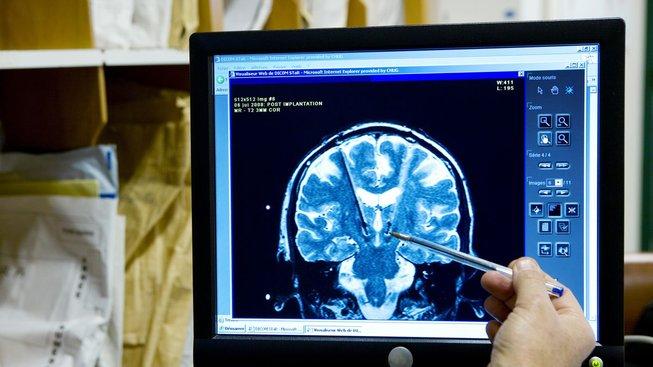 Vědci objevili možnost, jak zastavit u bojovníků obávané krvácení do mozku