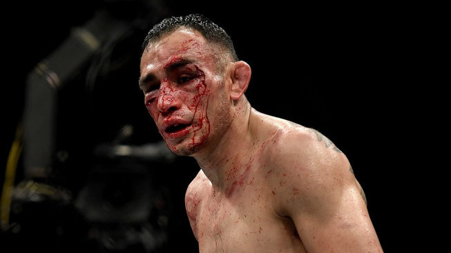 Tony Ferguson má zlomenou očnici a Niko Price vypadá jako Frankenstein. UFC 249 se neobešlo bez děsivých zranění