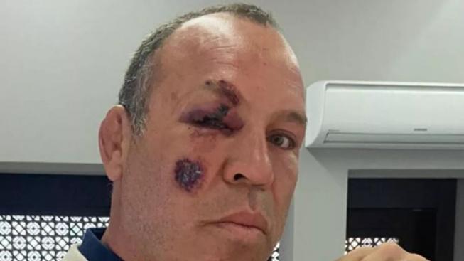 Legendární Wanderlei Silva byl sražen autem při jízdě na kole. Život mu zachránila přilba