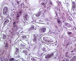 Calodium hepaticum