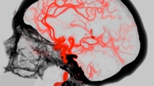 Willisův tepenný okruh, zásobující mozek okysličenou krví