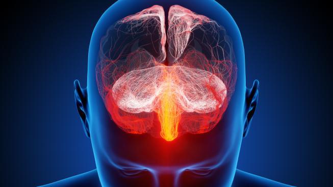 Zatímco ve zbytku těla se lze vrtat relativně bez obav, mozek vyžaduje výjimečnou péči