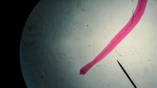 Tasemnice dětská (Hymenolepis nana). Ilustrační snímek