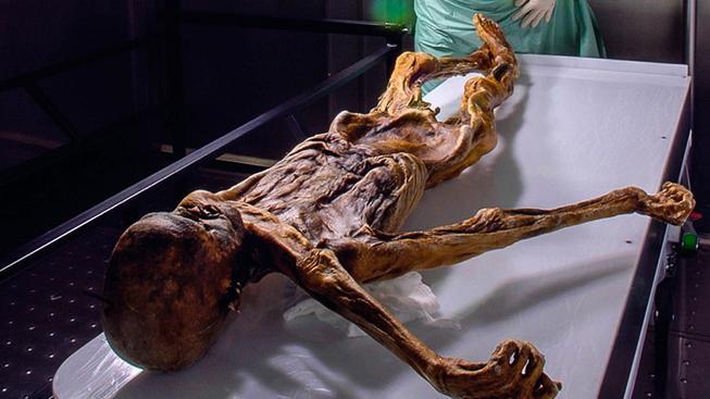 Pračlověka Ötziho asi trápily bolesti břicha