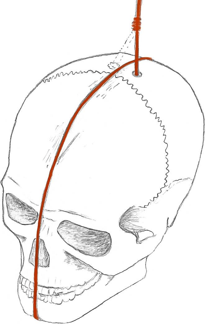 Rekonstrukce úpravy lebky