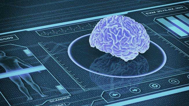 Nová umělá inteligence dokáže pomocí analýzy magnetické rezonance odhalit myšlenky na sebevraždu. Ilustrační snímek
