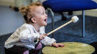 Kochleární implantát dává neslyšícím dětem sluch