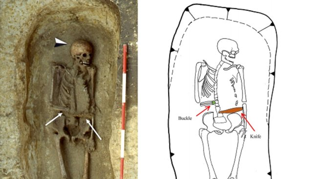Muž měl místo amputované paže zřejmě protézu se zbraní