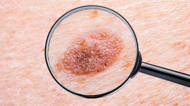 Melanom by mohlo být možné odhalit pomocí krevního testu. Ilustrační snímek
