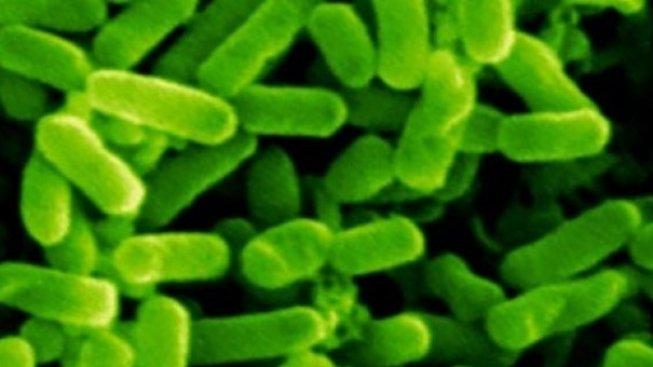 Bakterie ze skupiny archea