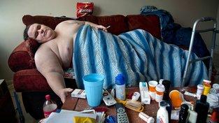 Obezita s sebou přináší řadu nemocí. Ilustrační snímek