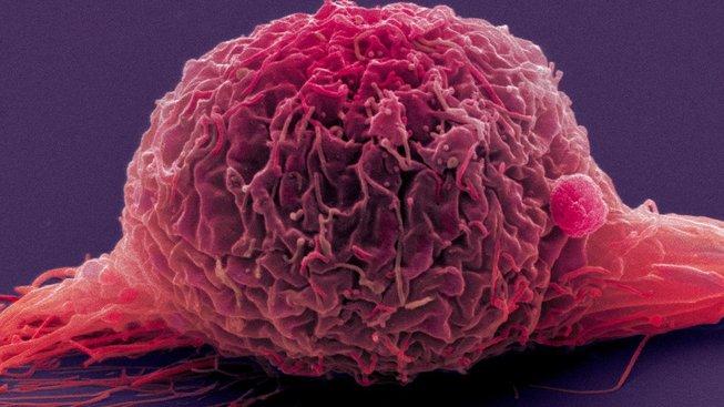 Lék je nejúčinnější u rakoviny močového měchýře