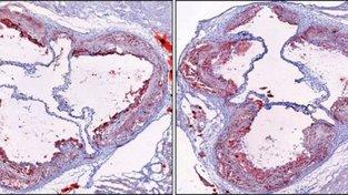 Plak u myši se zdravým spánkem (nalevo) vs. chronicky nevyspalé myši (napravo)