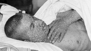 Na pravé neštovice umíraly miliony lidí