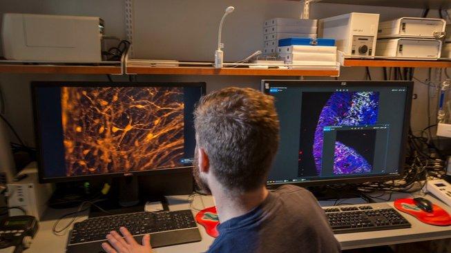 Pěstování mozkového organoidu v laboratoři