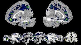 Snímek mozku