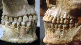 Lebka pravěkého člověka-lovce z území dnešního Rumunska (vlevo) a člověka ze zemědělské civilizace na místě současného Řecka z období před 2500 lety, na které je patrný posun ve skusu