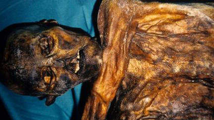 Bakterie pračlověka Ötziho naznačují, proč jsme nemocní