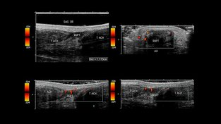 Prasklá Achillova šlacha na snímku z ultrazvuku