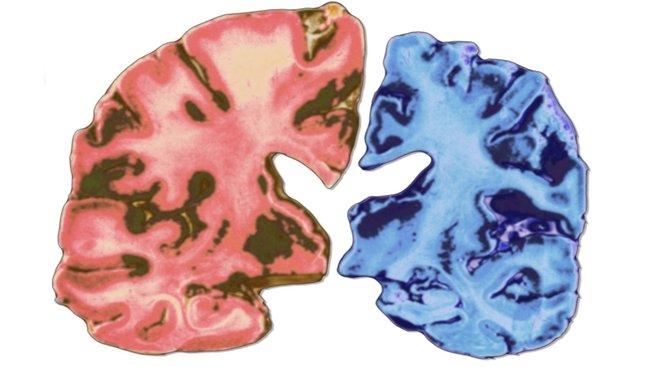 profimedia-0225365931 brains alzheimer