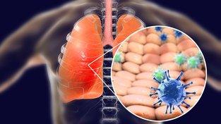 Koncepční ilustrace koronaviru v plicích