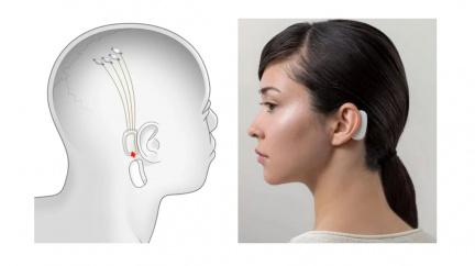 Počítač i telefon ovládnete elektrodami v mozku