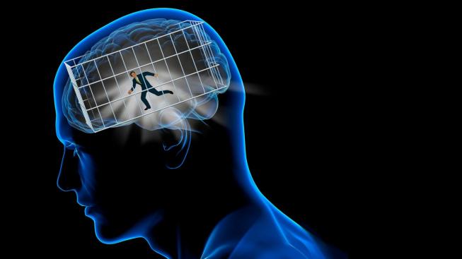 brain cage