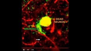 Likvidace neuronu zaznamenaná experty z Yale
