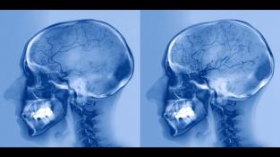 Rentgen tepen mozku pacienta před (vlevo) a po (vpravo) léčbě mrtvice, která nastala kvůli zablokované mozkové tepně. Důsledkem byl nedostatek průtoku krve do střední části mozku.