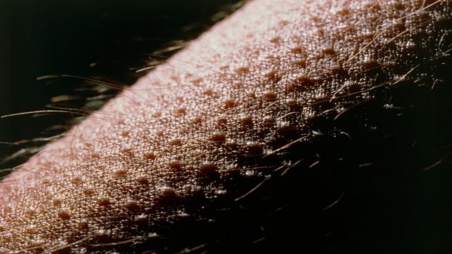 Husí kůže na lidské pokožce.