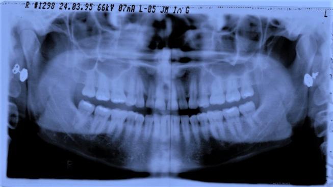 Rentgenový snímek zubů.