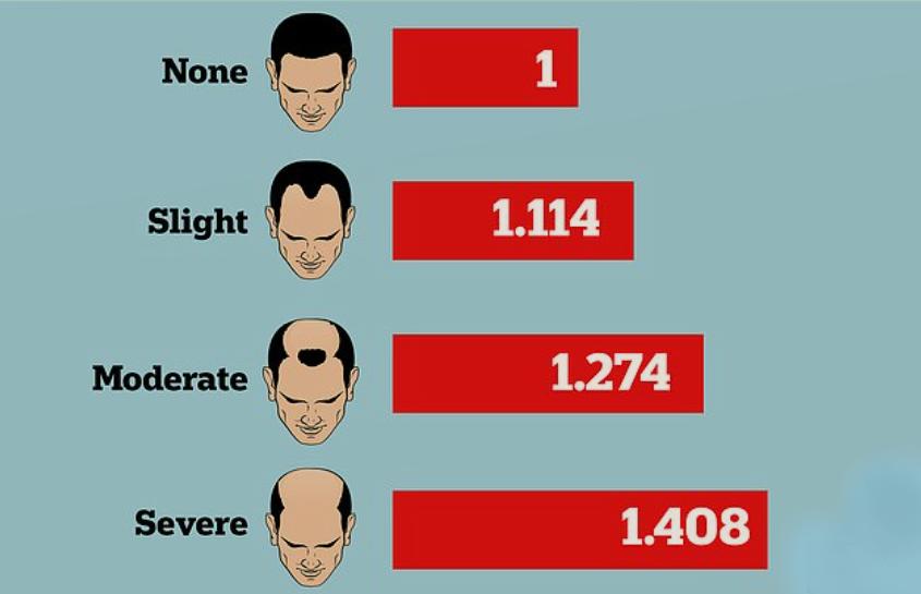 Riziko covidu pro různou míru plešatosti