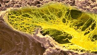 Snímek hlenky vápenatky z elektronového mikroskopu.