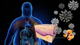 Řez kožní tkání obézního jedince ukazující podkožní tuk a tukové buňky (adipocyty, žluté). Vpravo nahoře jsou částice koronaviru. Obézní lidé mají víc tukových buněk, ve kterých se ukládají částice koronaviru. To u nich způsobuje větší míru zánětů.