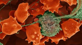 Krevní sraženina na kolorovaném snímku z elektronového mikroskopu. Zeleně je na něm vybarvena sraženina krevních destiček (trombus) a červeně jsou znázorněny červené krvinky.