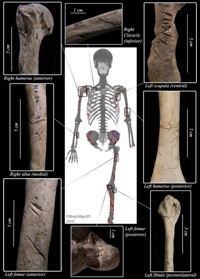 profimedia-0617611210 bones-bitten