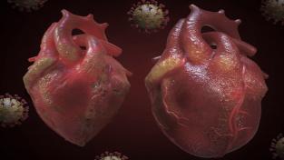 Covid vyvolává srdeční problémy. Vědci konečně zjistili, co za tím vězí
