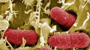Ve Francii se další dítě nakazilo bakterií E.coli