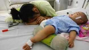 Záhadná nemoc HFMD, která letos usmrtila 64 dětí, se blíží k objasnění