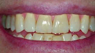 Metoda ZOOM nabízí dokonalé bělení zubů