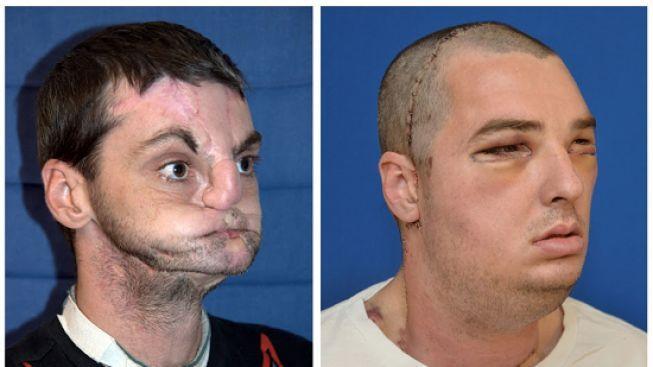 První transplantace celého obličeje se podařila. Muž dostal novou tvář, jazyk i zuby