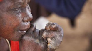 V Tichomoří přibývají případy lepry, boj s nemocí pokračuje